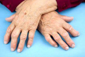 артрит у пожилых